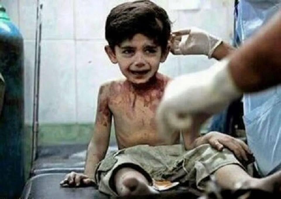 """55823739 1275348822619600 5077672949087993856 n - """"Quando eu morrer, vou contar tudo a Deus"""", afirma criança vítima da guerra na Síria"""